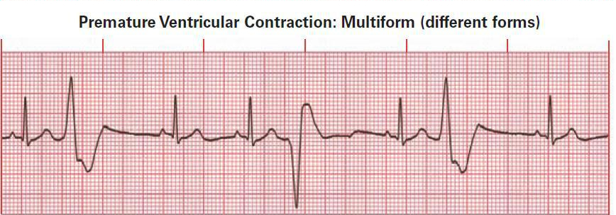 Premature Ventricular Contraction (PVC) Multiform