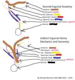 inguinal hernium in woman diagram [ 1660 x 1440 Pixel ]