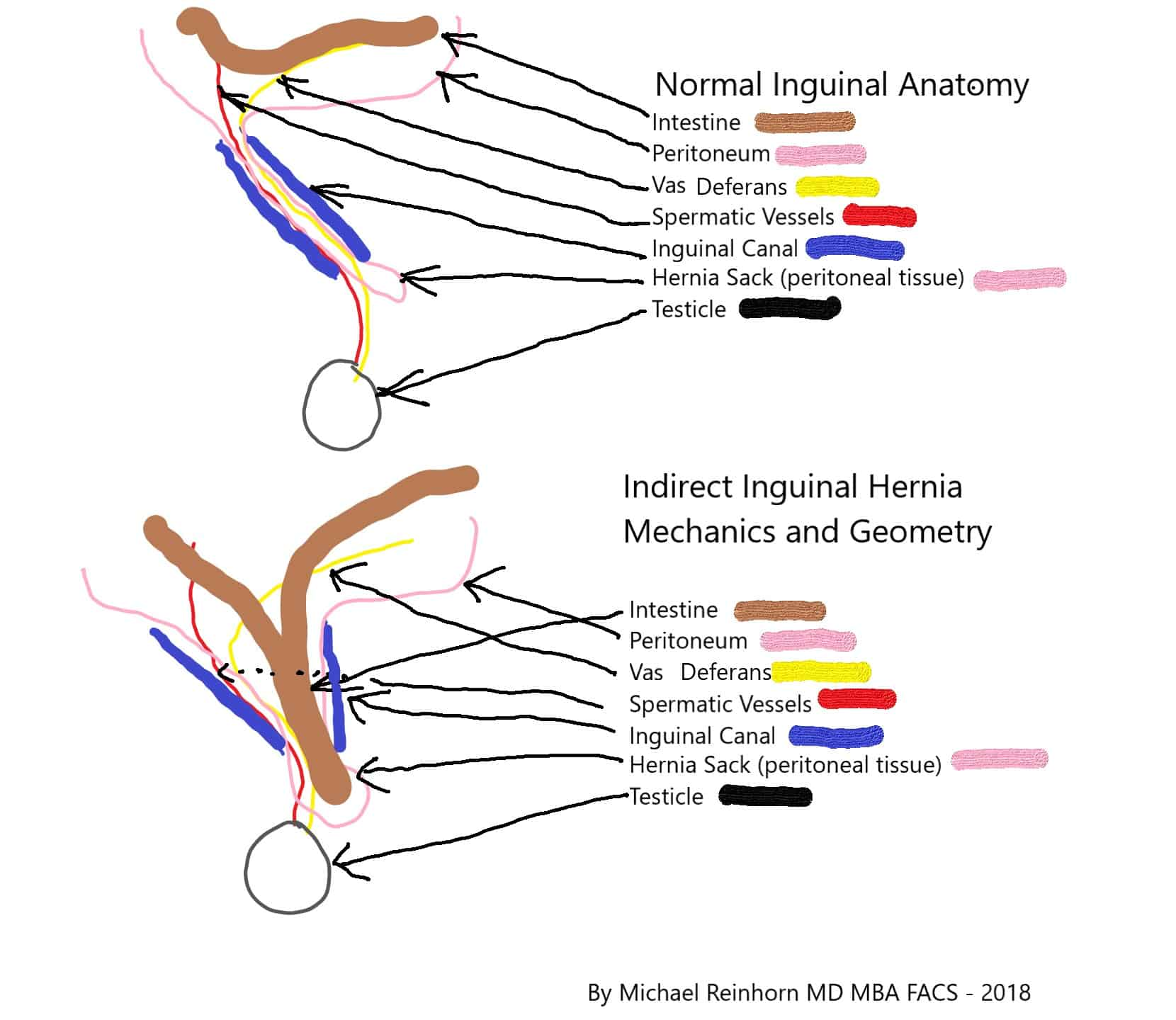 hight resolution of inguinal hernium in woman diagram