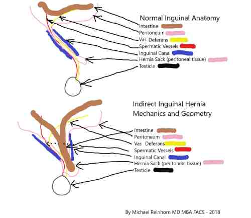 small resolution of inguinal hernium in woman diagram