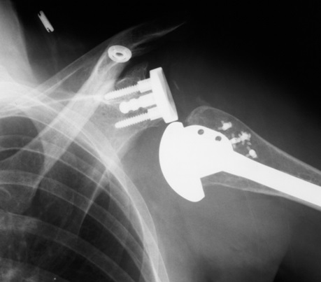 Shoulder replacement prothesis  augustak12xfc2com