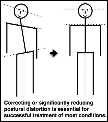 Posture Screenings: Clinical Baselines or Marketing Gimmicks?
