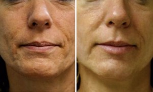 Say Goodbye to Scars with Laser Scar Removal
