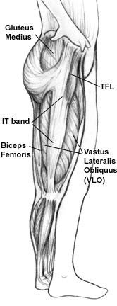 Sports & Injury Massage Therapy for Iliotibial Band Pain