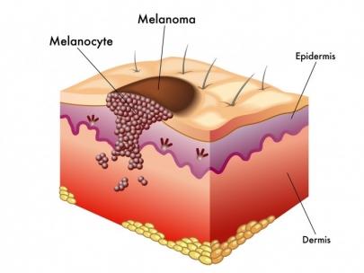 europaiki-mera-melanomatos