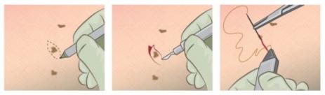 Αφαίρεση συγγενών μελαχρωματικών σπίλων (ελιές)