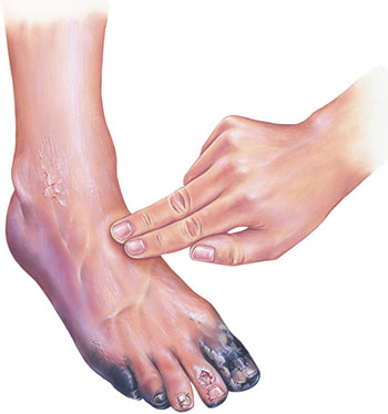 Diabetes foot photo