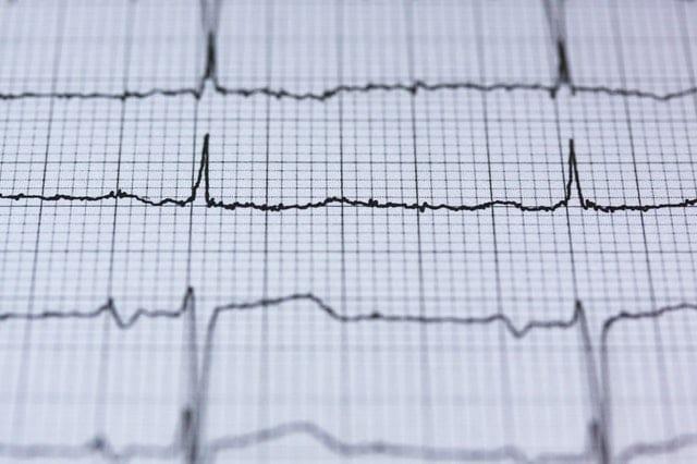 heart failure colonoscopy prep