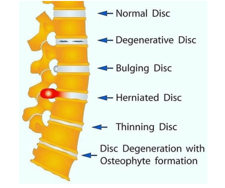Got a slipped disc? Been told you have 1 Untitled design 5