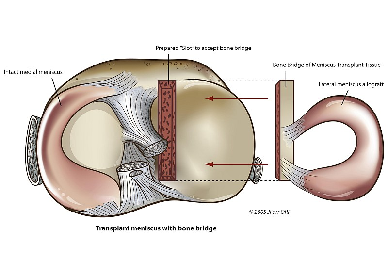 Meniscus Replacement Surgery Cost - Ideas de diseño para el