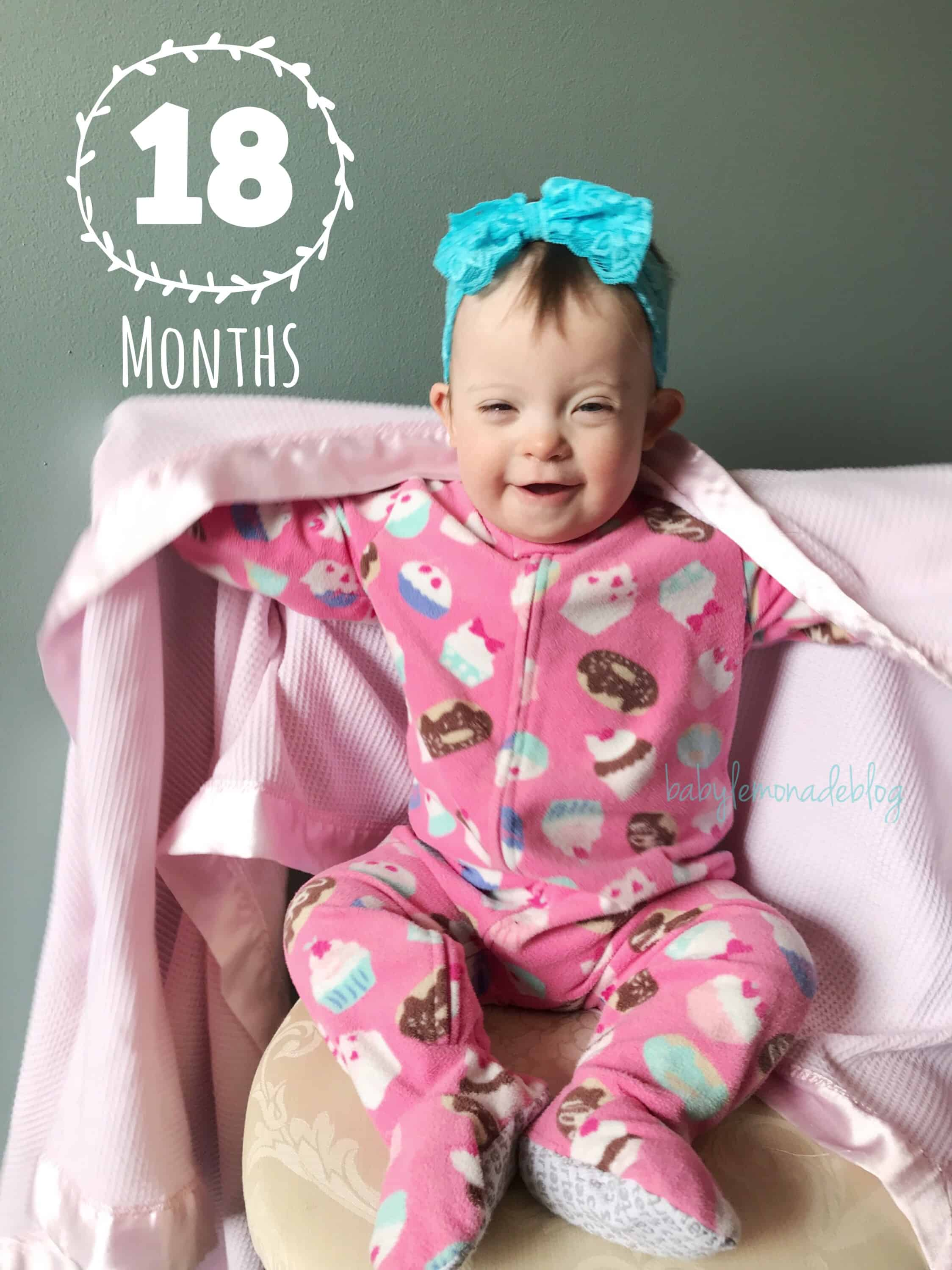 My 18 Month Old With Down Syndrome