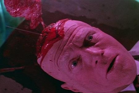 dead pit brain
