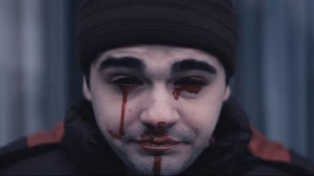 gorenos bleeding eyes