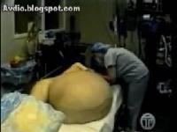 14kg tumor