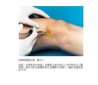 李文吉醫師 骨科專欄: 淺談 玻尿酸 關節注射