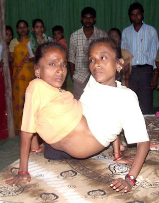 conjoined twins 40-year-old