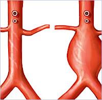 aneurisma dell'aorta addominale