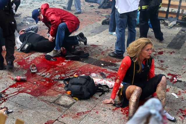 Boston-4/15/13- Kevin Corcoran(left) from Lowell puts his belt on the leg of his wife Celeste to stop the bleeding, as Nicole Gross(rt)  from Charlotte, N.C.sits in shock  on the sidewalk at the site of the first Boston Marathon bombing near the finish line on the Boylston Street.