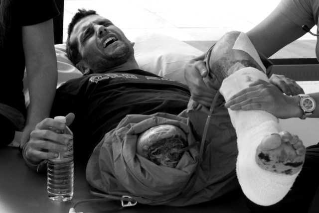 """In agony, marathon bomb victim Marc Fucarile receives physical therapy. """"It's killing me,"""" he yelled to Jen one night, referring to his """"good leg."""" """"I'm telling you. If the pain doesn't stop, I'm going to tell them to take it off."""""""