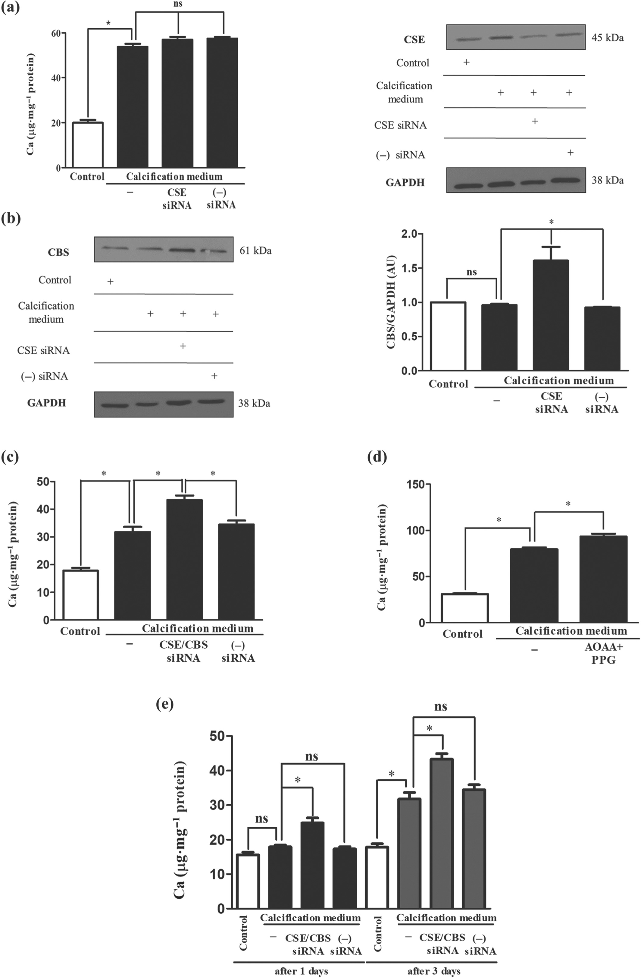 Hydrogen Sulfide Inhibits Calcification Of Heart Valves