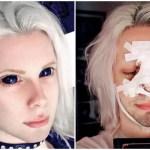【身体改造】「エルフになりたい!」整形で妖精を目指す美形コスプレイヤー