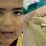 珍ドクターX|おもちゃの笛を飲み込んだ少年喋ると「ピーピー」緊急手術