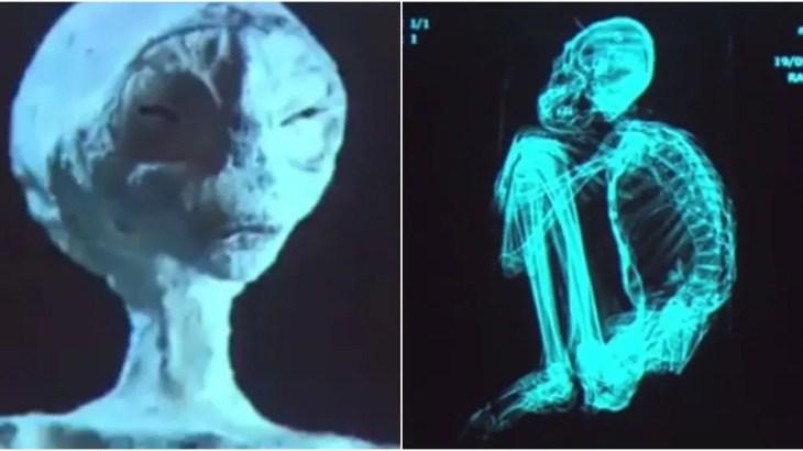 やっぱ偽物!?ナスカの3本指宇宙人のミイラで科学者達が大論争!