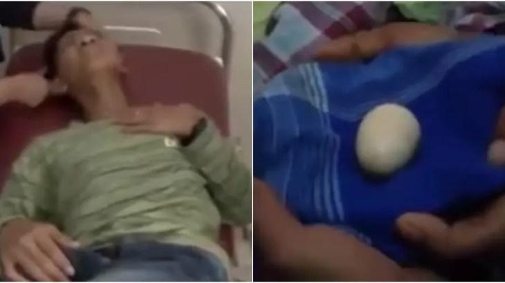 リアル鳥人間…2年間で20個の卵を産んだ14歳男子に医学界が動揺