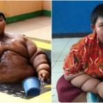 【あの肥満児は今?】192kg世界一太った10歳少年が83kgダイエット成功