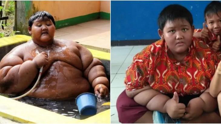 世界一太った少年ダイエット成功