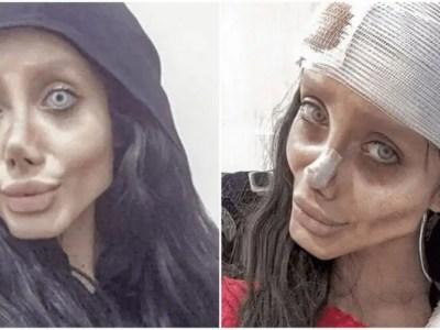 イランのアンジェリーナ・ジョリーが新型コロナウイルスに感染