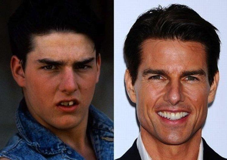 Tom Cruise As 20 maiores celebridades com facetas