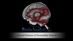 BrainAnalyze's BrainAnalyst in GE HealthCare Advantage Workstation Environment