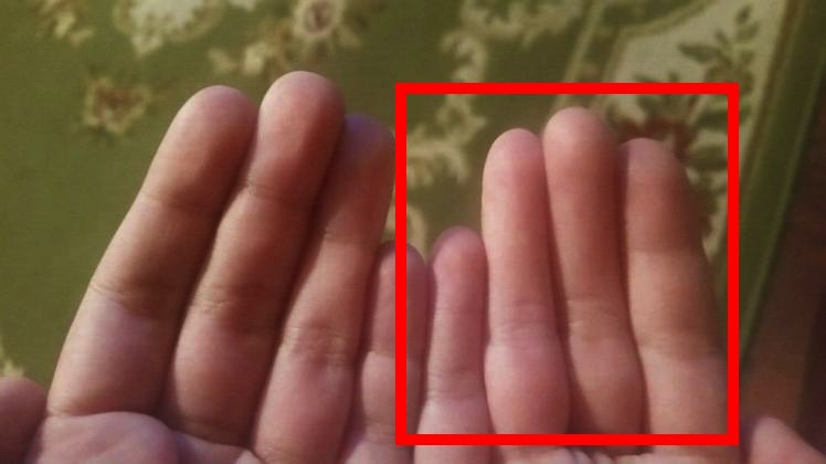 Boy's fingers have the internet confused