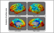 Appeared in Winkler et al. (2012), Neuroimage. [http://dx.doi.org/10.1016/j.neuroimage.2012.03.026]