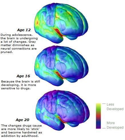 braindev_adolescence1.jpg