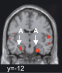 Claimed amygdala activation, which rather looks like collateral sulcus/entorhinal cortex... (from Bartels & Zeki 2004)