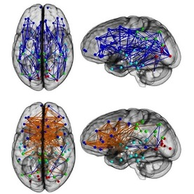 How Men's Brains Are Wired Differently Than Women's