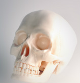 Replica skull of Phineas Gage before accident