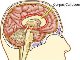 Image result for corpus callosum
