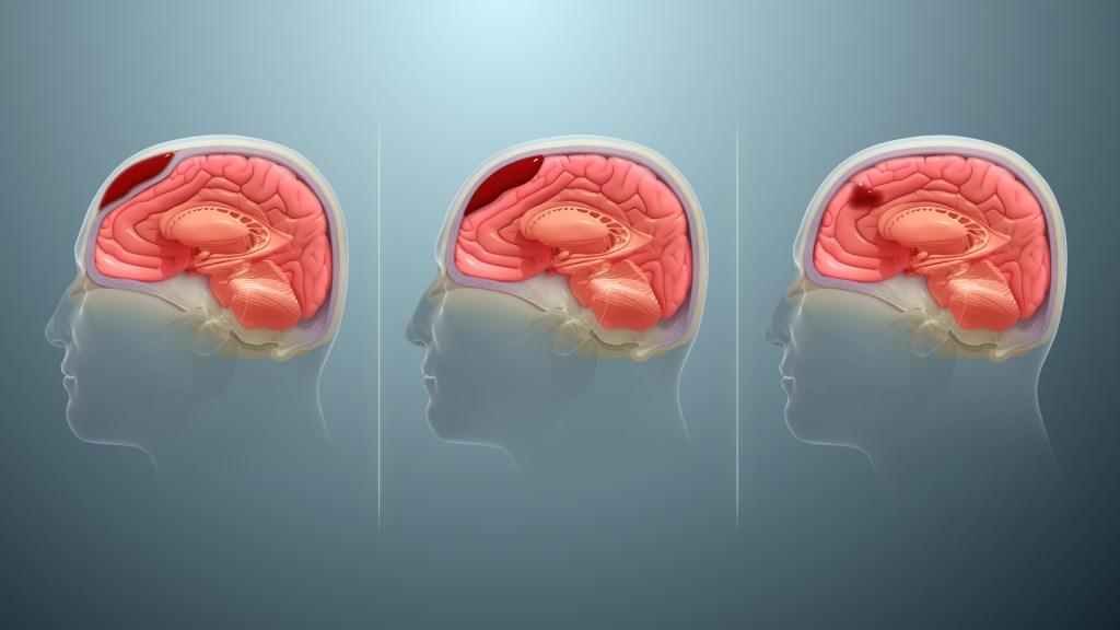 Types of Brain Injuries   Brain Made Simple