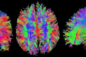 Brain ©GR_Image (Pixabay)