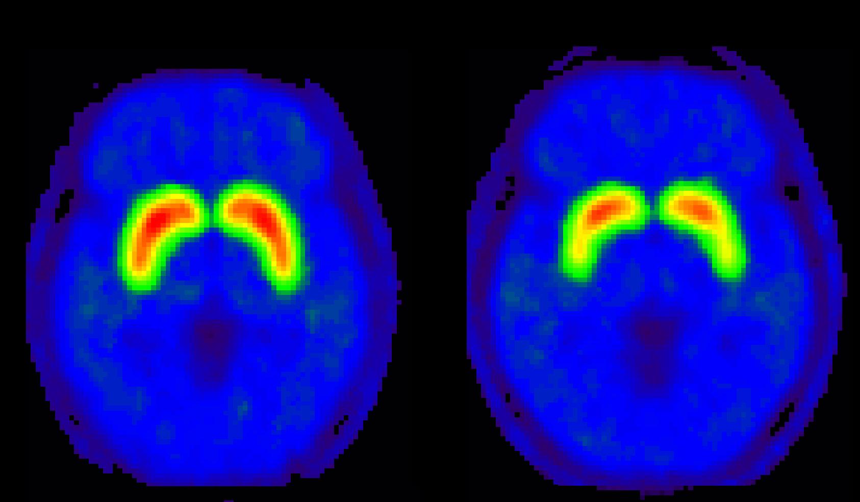 Imagem PET-SCAN mostrando o uso do sistema dopaminergico.