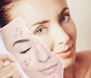 تصبغات الجلد -1 تصبغات البشرة