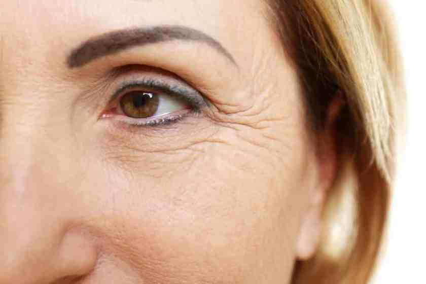 علاج التجاعيد -1 أسباب ظهور تجاعيد العين المبكرة الهالات السوداء: