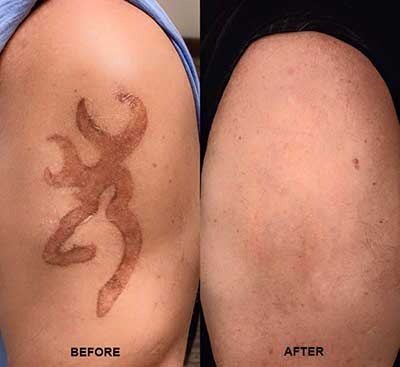 NonLaser Tattoo Removal  Brannick Clinic of Natural Medicine