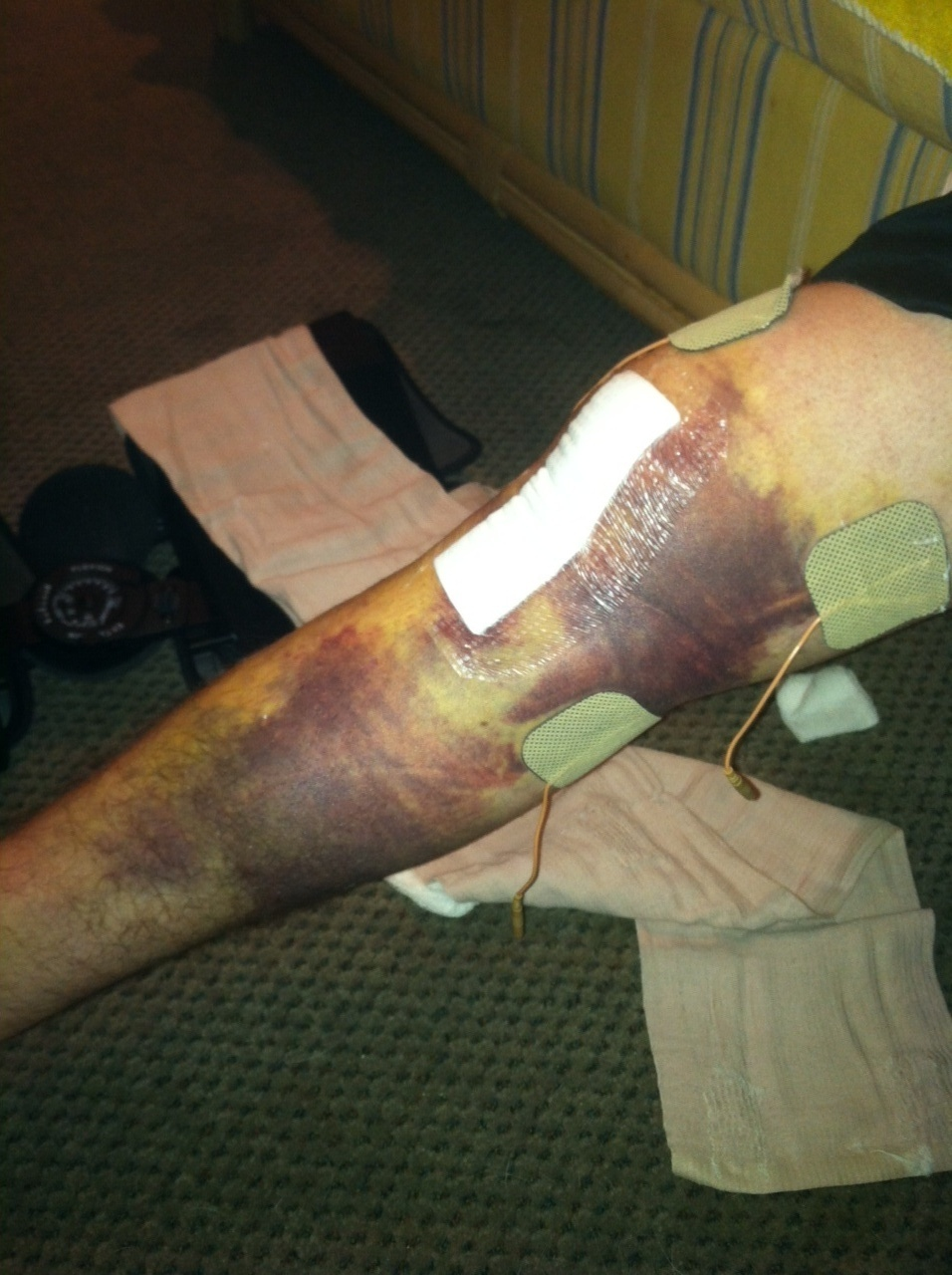 ACL Surgery and Recovery Blog  brantpickup