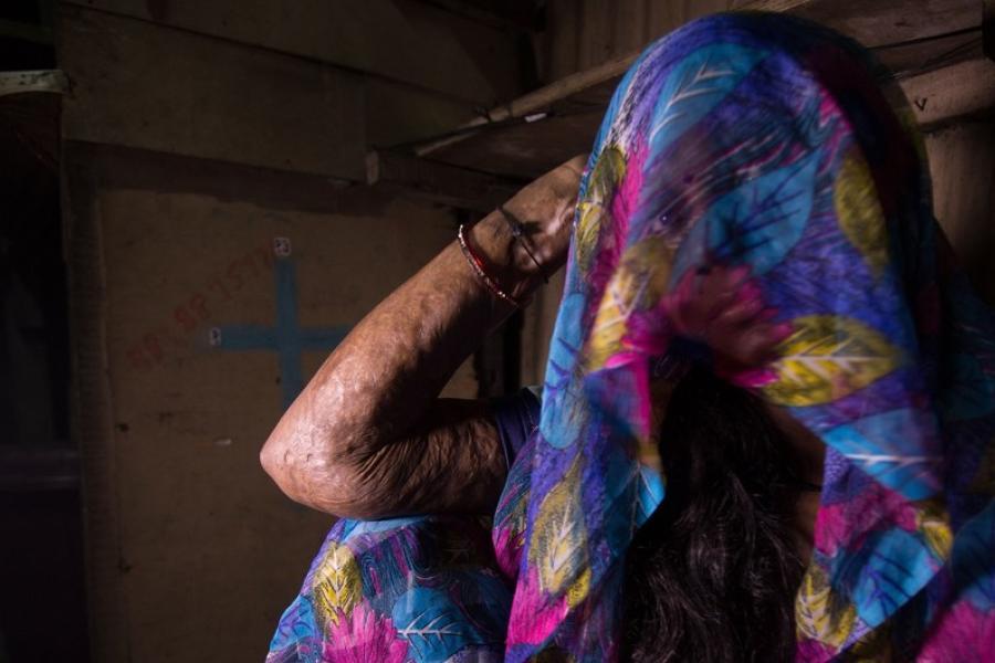 mulher com marcas de violência no braço
