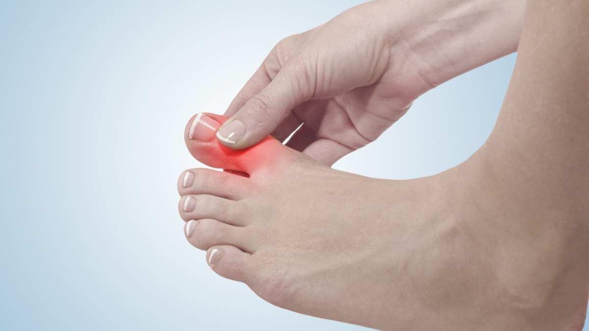 Câimbra nos dedos dos pés. Dicas de como evitar e tratar esse mal