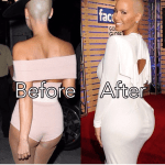 Amber Rose Butt Implant Plastic Surgery